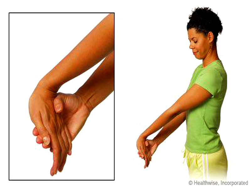 آرنج تنیس (tennis elbow)