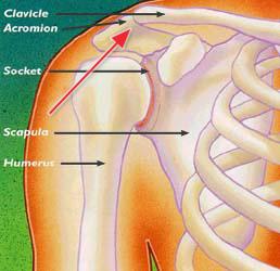 در رفتگی مفصل ترقوه به کتف یا shoulder separation