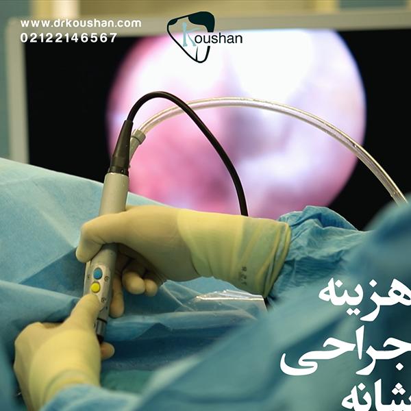 هزینه عمل جراحی شانه